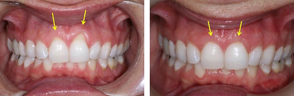 receding gums front teeth-ის სურათის შედეგი