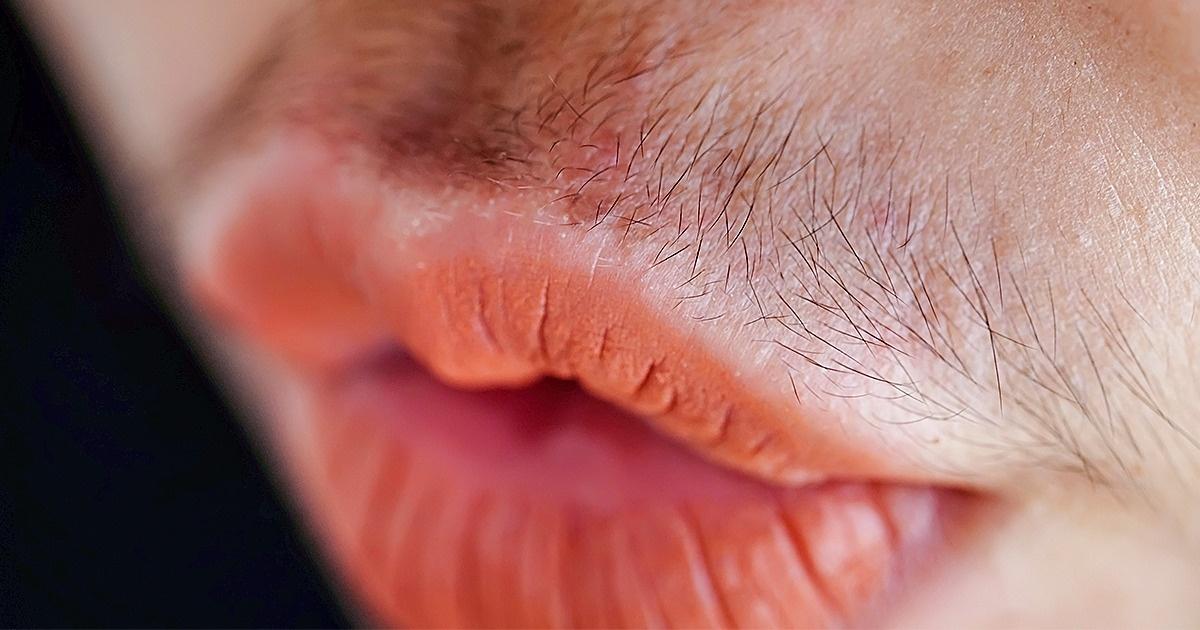 რას ამბობს თმის სიხშირე ქალის ჯანმრთელობაზე ხვსდასხვა ადგილას