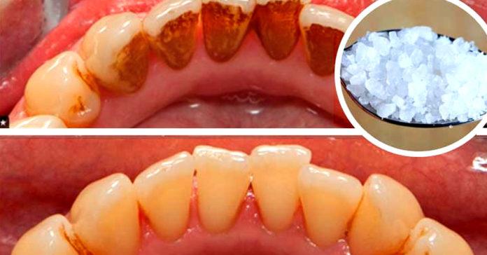 ეს საშუალება ძალიან გაყვითლებულ კბილებსაც გაათეთრებს და კბილის ქვას მოგაშორებთ. შესანიშნავი ეფექტი