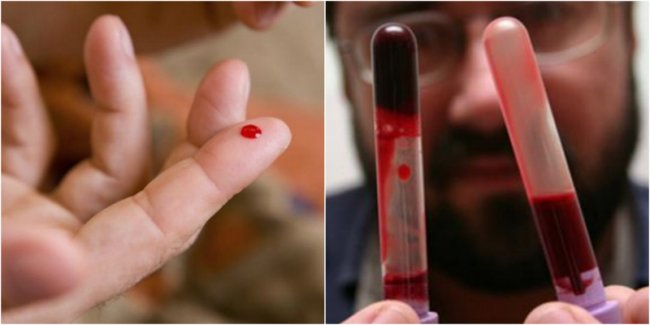 გაიგეთ რა იწვევს სისხლის შედედებას, როგორ ვებრძოლოთ მას და რა საფრთხეს წარმოადგენს ის ჩვენი ჯანმრთელობისთვის.