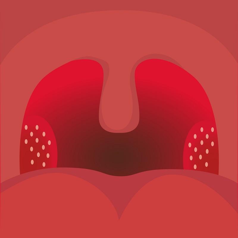 ლუგოლის ხსნარი – იაფიანი და ეფექტური საშუალება, რომელიც გიხსნით მწვავე რესპირატორული ვირუსისგან, გაგიძლიერებთ იმუნიტეტს და...