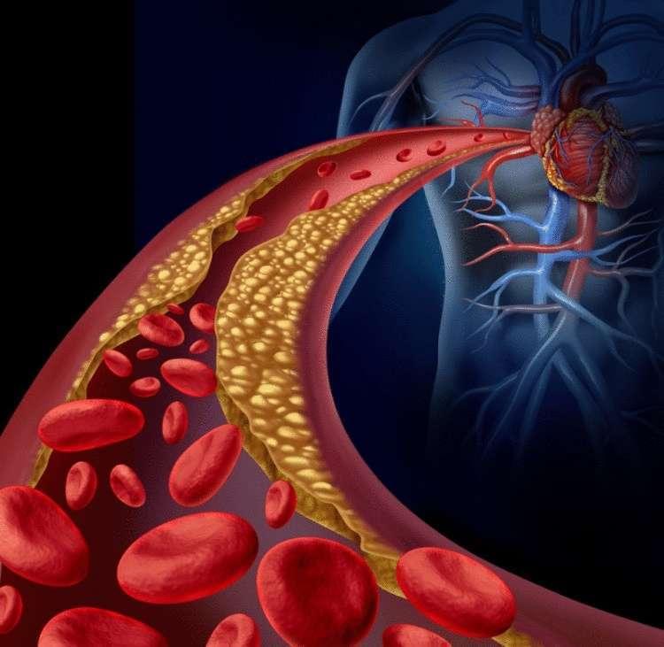 იცოდით, რომ მხოლოდ ერთი ინგრედიენტით შეგიძლიათ გაიუმჯობესოთ გულისა და ღვიძლის ჯანმრთელობის მდგომარეობა? ამასთან ერთად განთავისუფლდებით ცუდი ქოლესტერინისგან. გაიგეთ როგორ...