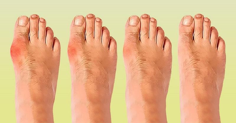 როგორ განვთავისუფლდეთ ფეხზე გაჩენილი ძვლოვანი წამონაზარდისგან? ხალხური საშუალებები და მათი გამოყენების წესი...